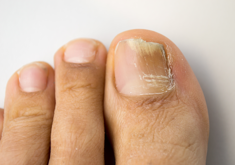 Vineyard Toenail Fungus Treatment - Rogers Foot & Ankle