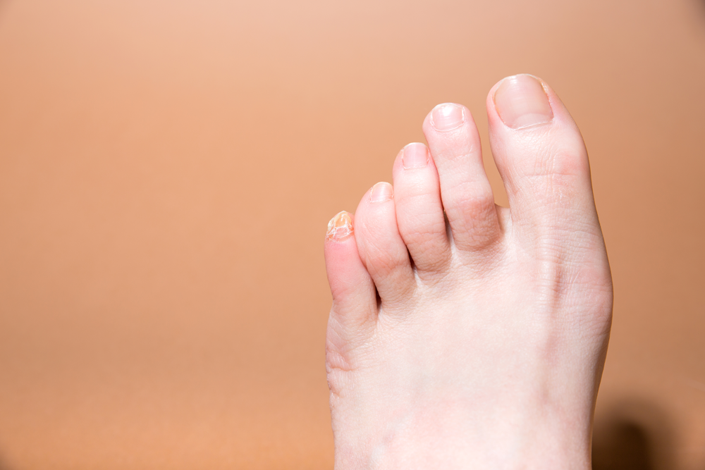 Vineyard Hammertoe Treatments