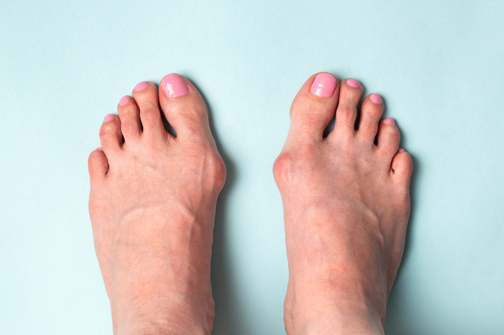 Vineyard Bunion Treatment