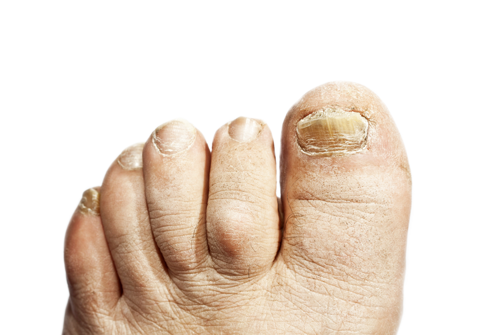 Fairfield Hammertoe Treatments