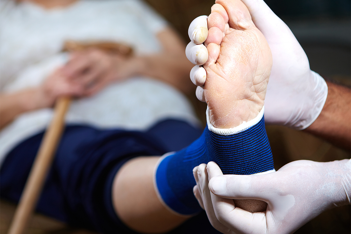 Lindon Rolled Ankle Treatment - Rogers Foot & Ankle