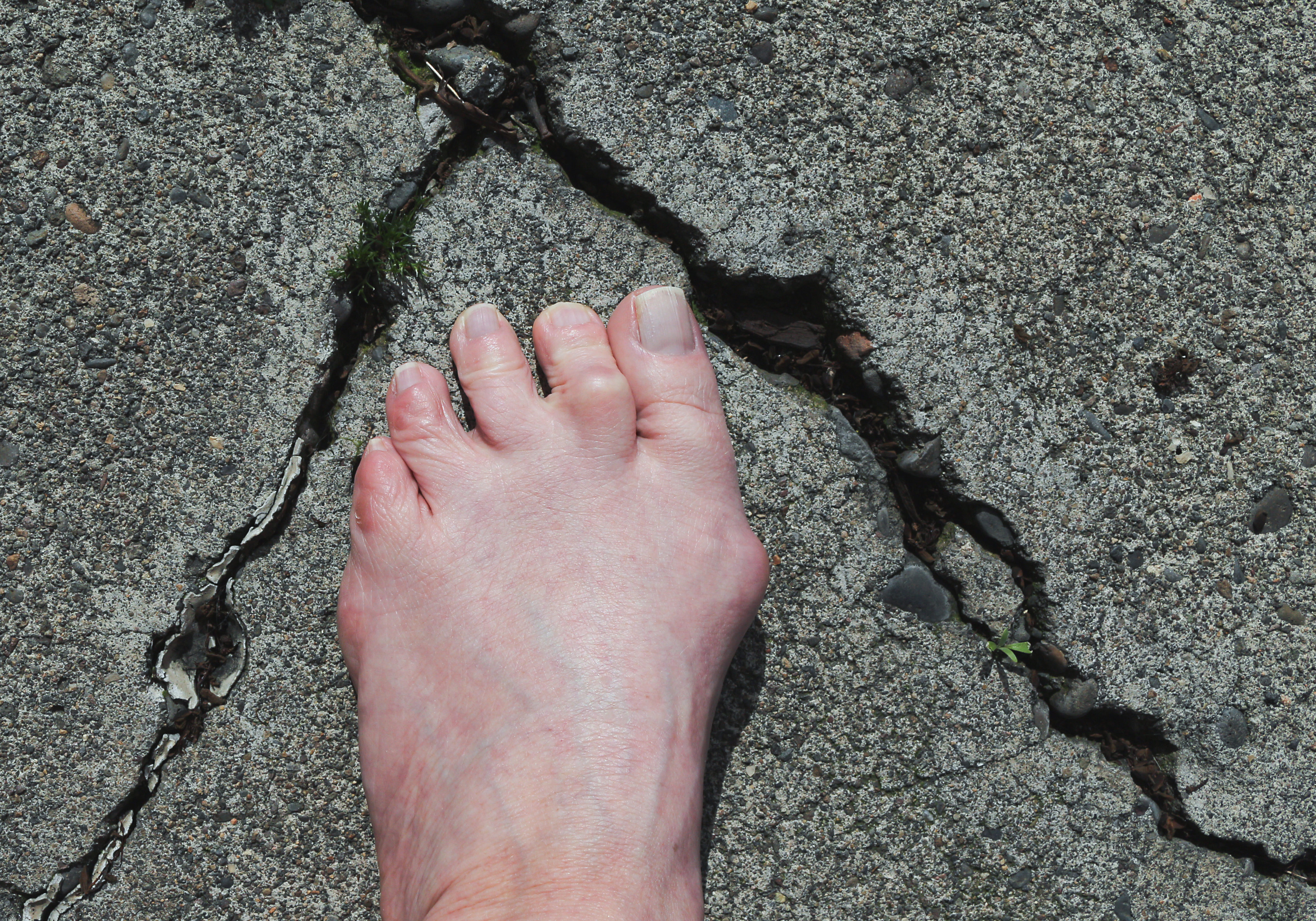 In Need of Repair, foot with bunion and hammer toe on a cracked concrete background.