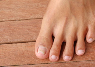 Fairfield Toenail Fungus Treatment