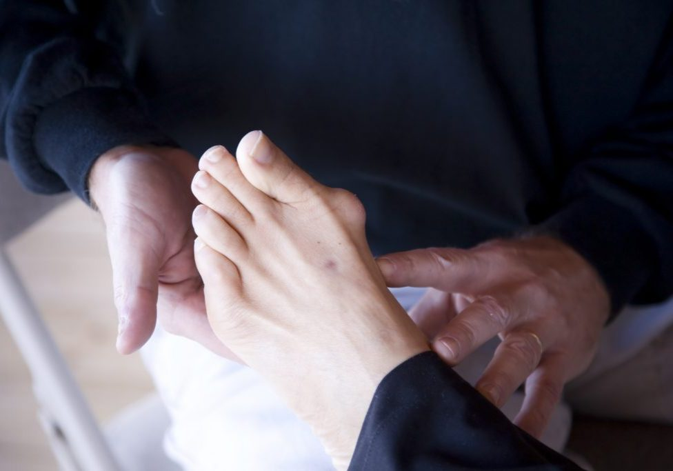 podiatrist examines a bunion on a foot