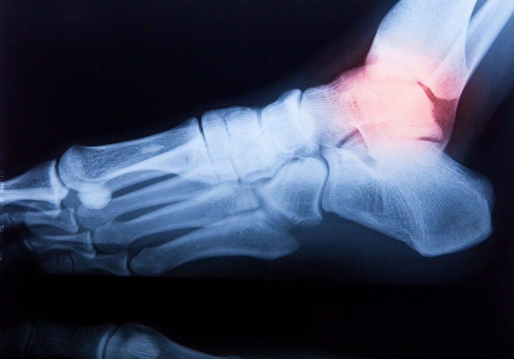 Ankle feet & knee joint X-ray human photo film